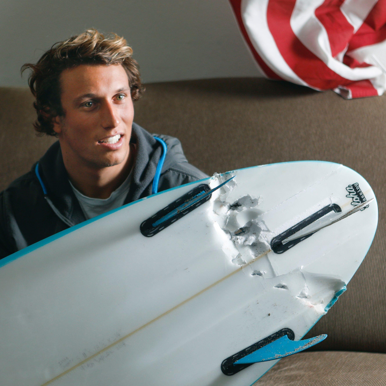 Calif. surfer survives shark attack: 'I'm happy to be alive'