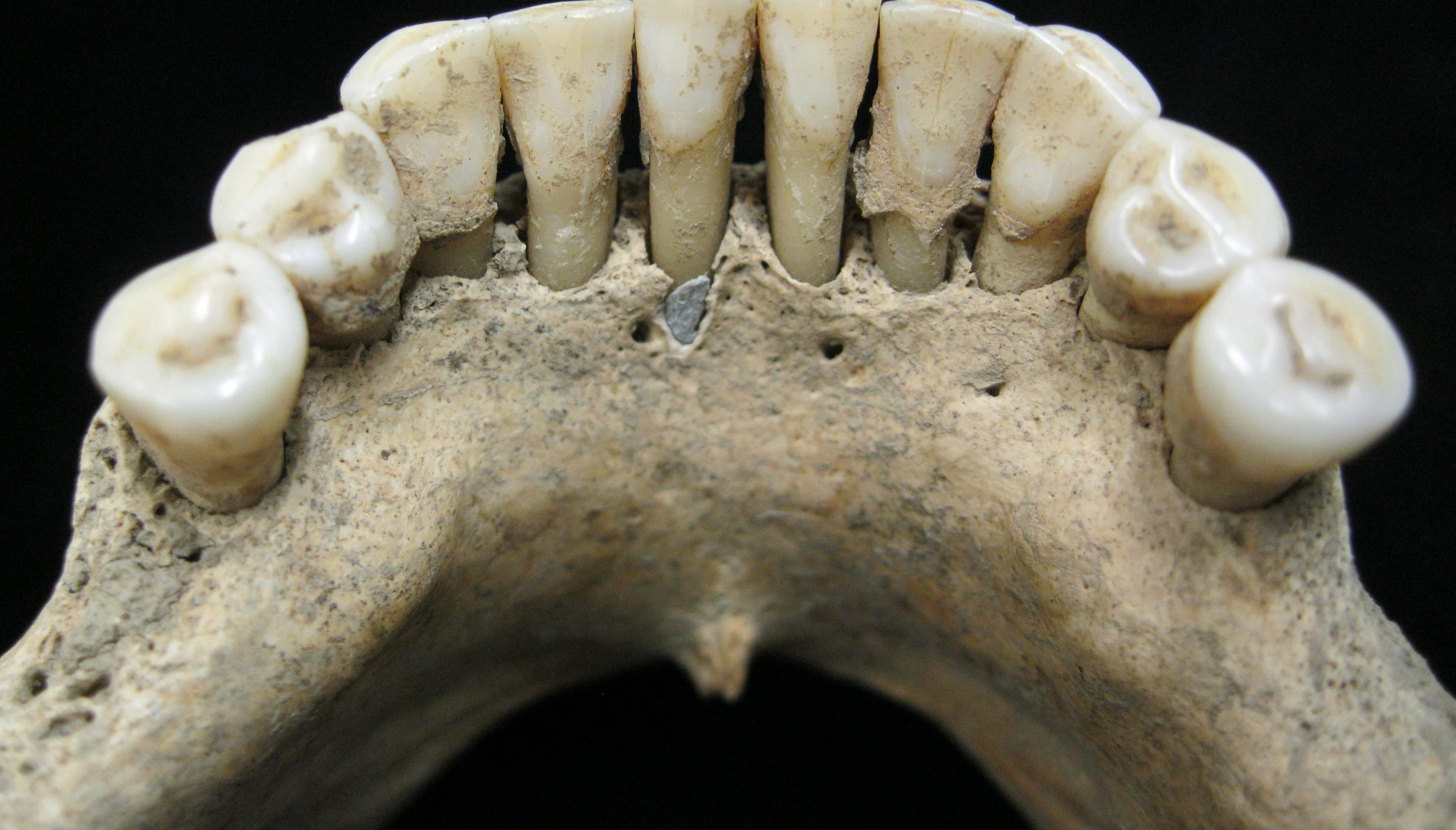 Medieval skeleton found with rare, expensive blue ink embedded in teeth, could rewrite women's history