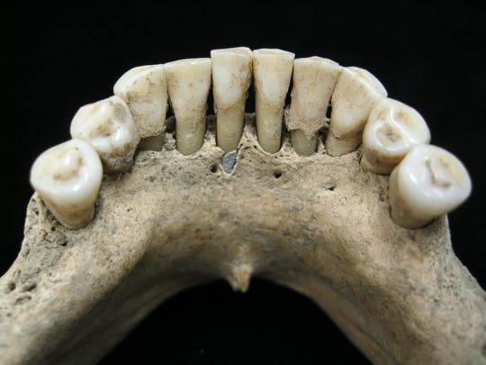 The lower jaw of a medieval skeleton reveals entrapped lapis lazuli pigment, a rare blue dye that was used in luxury and religious documents of the time. What's remarkable is that the jaw belonged to a woman -- and women were not known to author such illustrations.