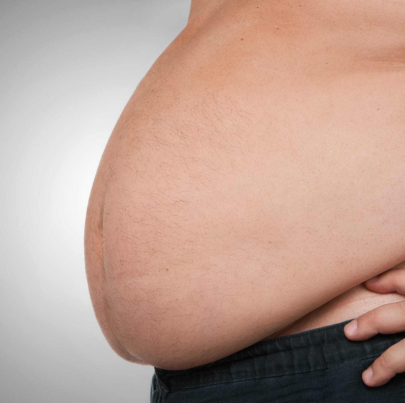 Obesity poised to overtake smoking as leading preventable cause of cancer