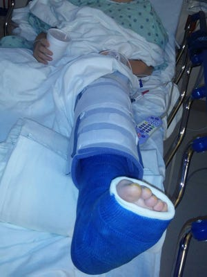 Lovina and Joe's youngest son Kevin had surgery on his leg this week and must wear a cast for 6-8 weeks.