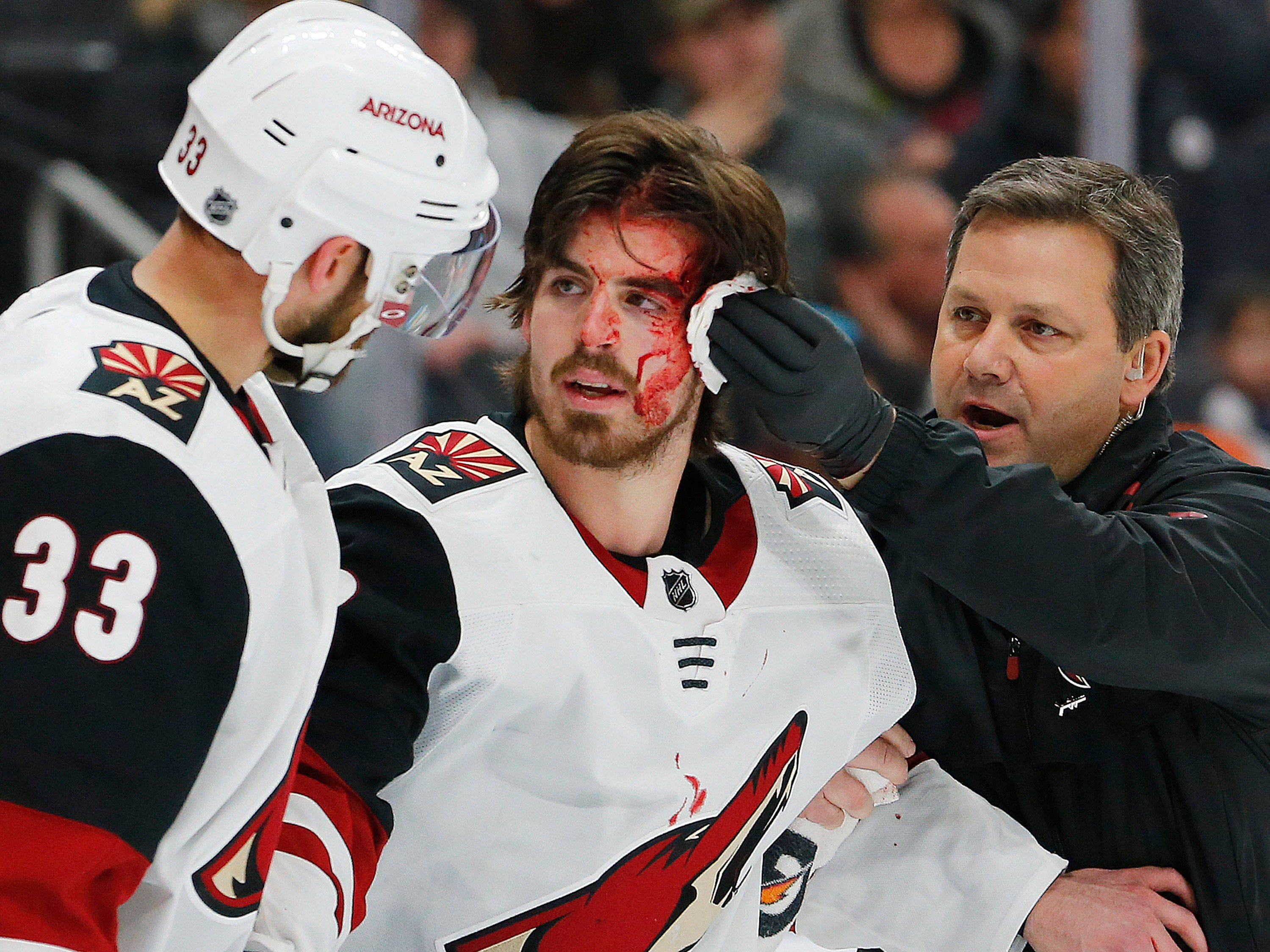 (Editor's Note: Graphic Content) Jan 12, 2019; Edmonton, Alberta, CAN; Arizona Coyotes trainer looks after forward Conor Garland (83) who was cut by a shot that deflected off his face and into the Edmonton Oilers net for a goal during the second period. (Perry Nelson-USA TODAY Sports)