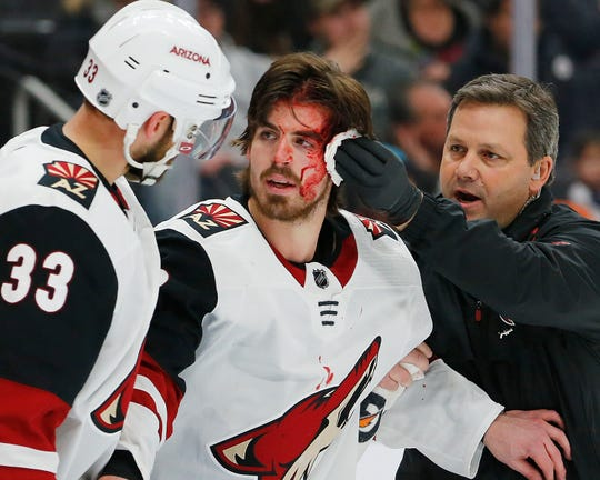 Arizona Coyotes forward Conor Garland is treated after he was cut by a shot that deflected off his face and into the Edmonton Oilers net for a goal.