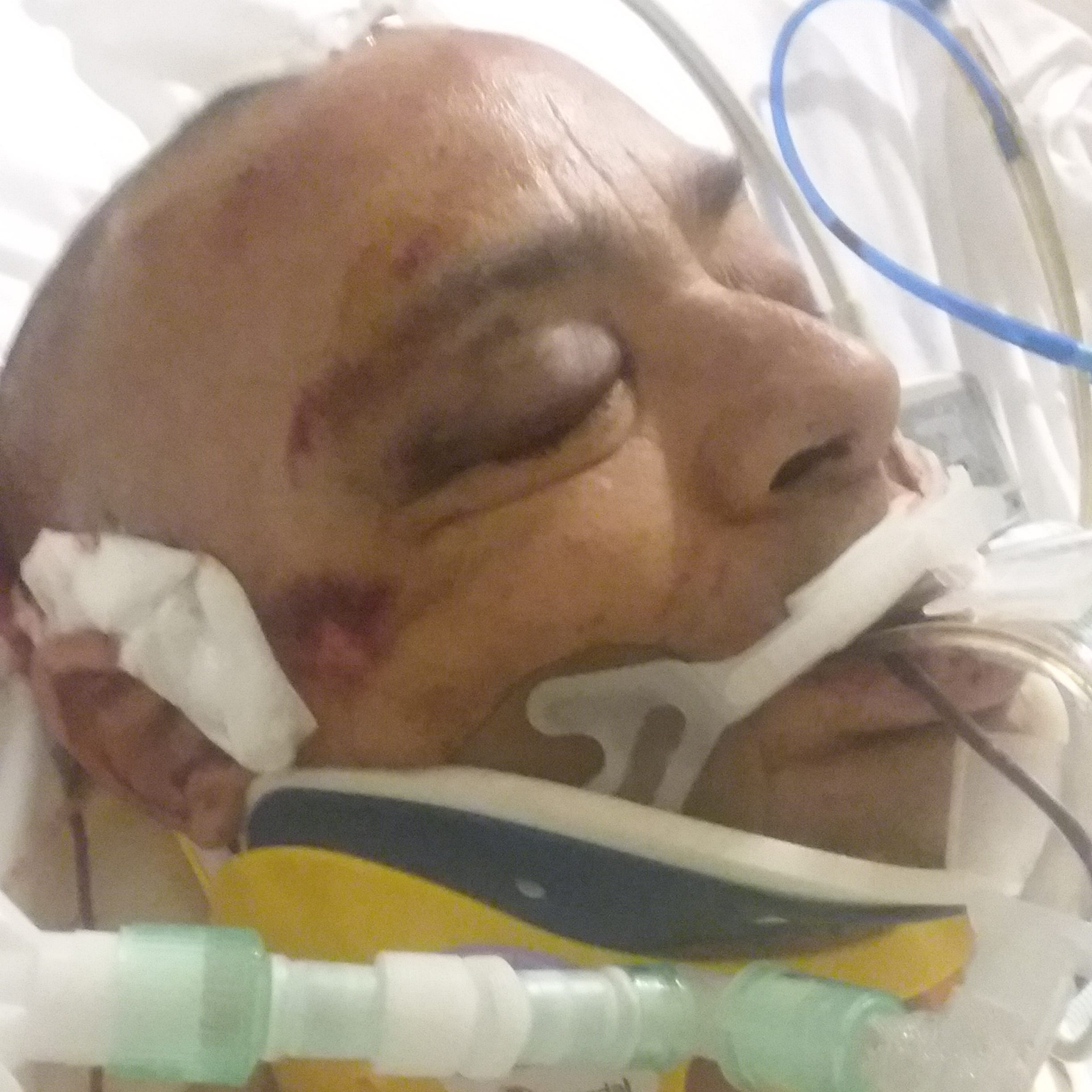Vineland man on life support after violent arrest at Inspira Medical Center
