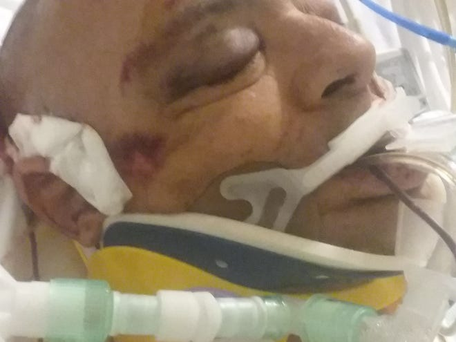 A picture of Vineland resident Bill Oslin taken by family members and provided to The Daily Journal. Oslin underwent more than six hours of surgery for head trauma and is on life support, his son Paige Oslin said on Monday