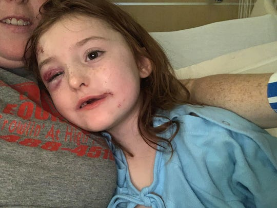 Nevaeh continues to smile despite her horrific injuries.