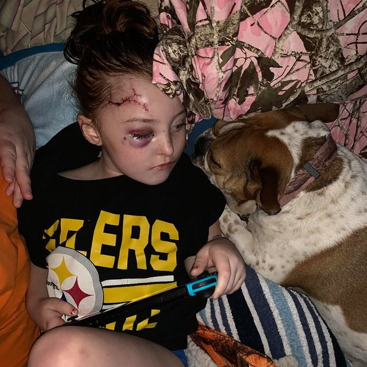 Special-needs girl, 5, brutally attacked by family dog