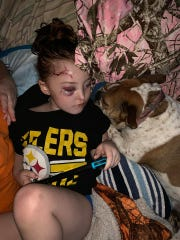 Even after the attack, Nevaeh finds comfort in her other dogs. NOTE: This is not the dog who attacked her.