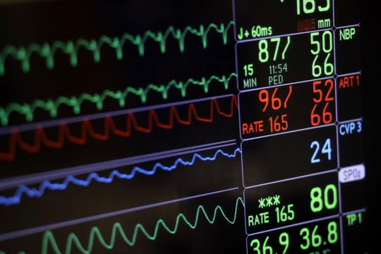 In this 2016 file photo, a screen displays a patient's vital signs during open heart surgery at the University of Maryland Medical Center in Baltimore. U.S. hospitals are now required to post list prices for medical services online, under federal rules meant to help patients find affordable care and avoid hefty surprise bills.