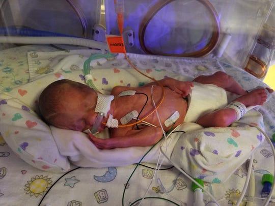 Ruby was born at 25 weeks, three days on Dec. 4, 2018.