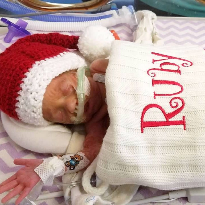 How to help Endicott parents whose 'little gem' daughter Ruby was born 14 weeks early