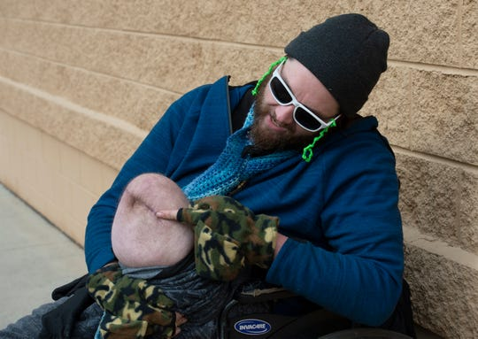 Matthew Owens shows the scar on his amputated leg Monday, Jan. 14, 2019. Owens lost his left leg when he was hit by a stolen car.