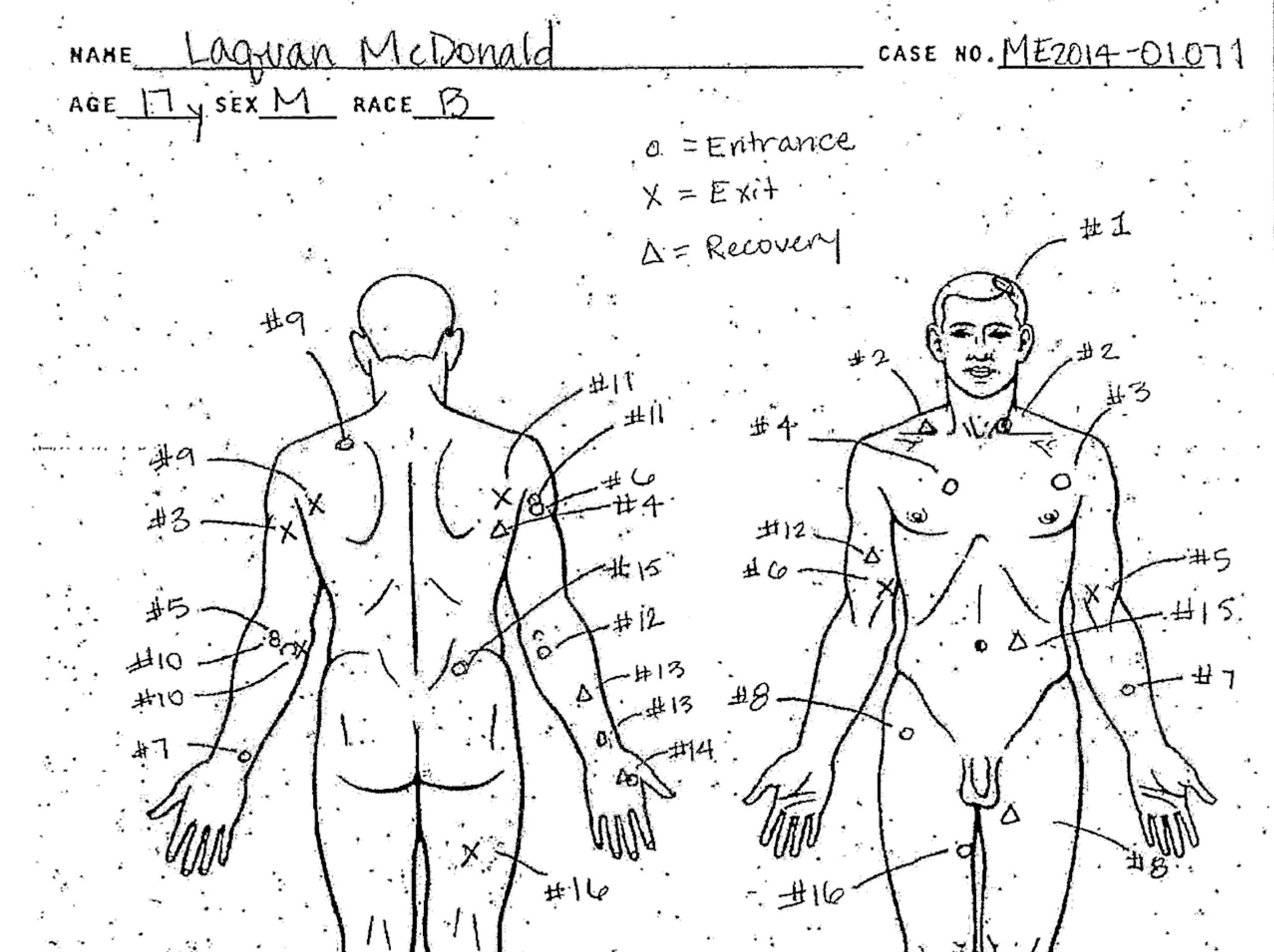 A handout image provided by the Office of the Medical Examiner of Cook County, Illinois, on Nov. 24, 2015, shows a diagram of bullet holes allegedly suffered by 17 year-old Laquan McDonald in a police shooting incident in October 2014. The 17 year-old was allegedly shot 16 times by Chicago Police Officer Jason Van Dyke on 20 October 2014.