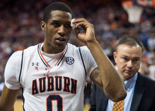 Auburn forward Horace Spencer (0) heads to the locker room with a head injury at Auburn Arena in Auburn, Ala., on Saturday, Jan. 19, 2019. Kentucky defeated Auburn 82-80.