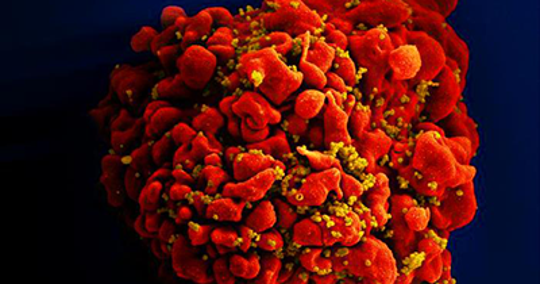 Image of the HIV virus