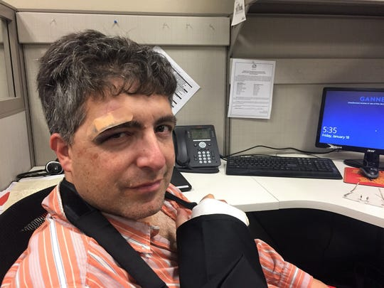 Sun-News reporter Algernon D'Ammassa hours after a misadventure on a Spin scooter on Friday, Jan. 18, 2019.