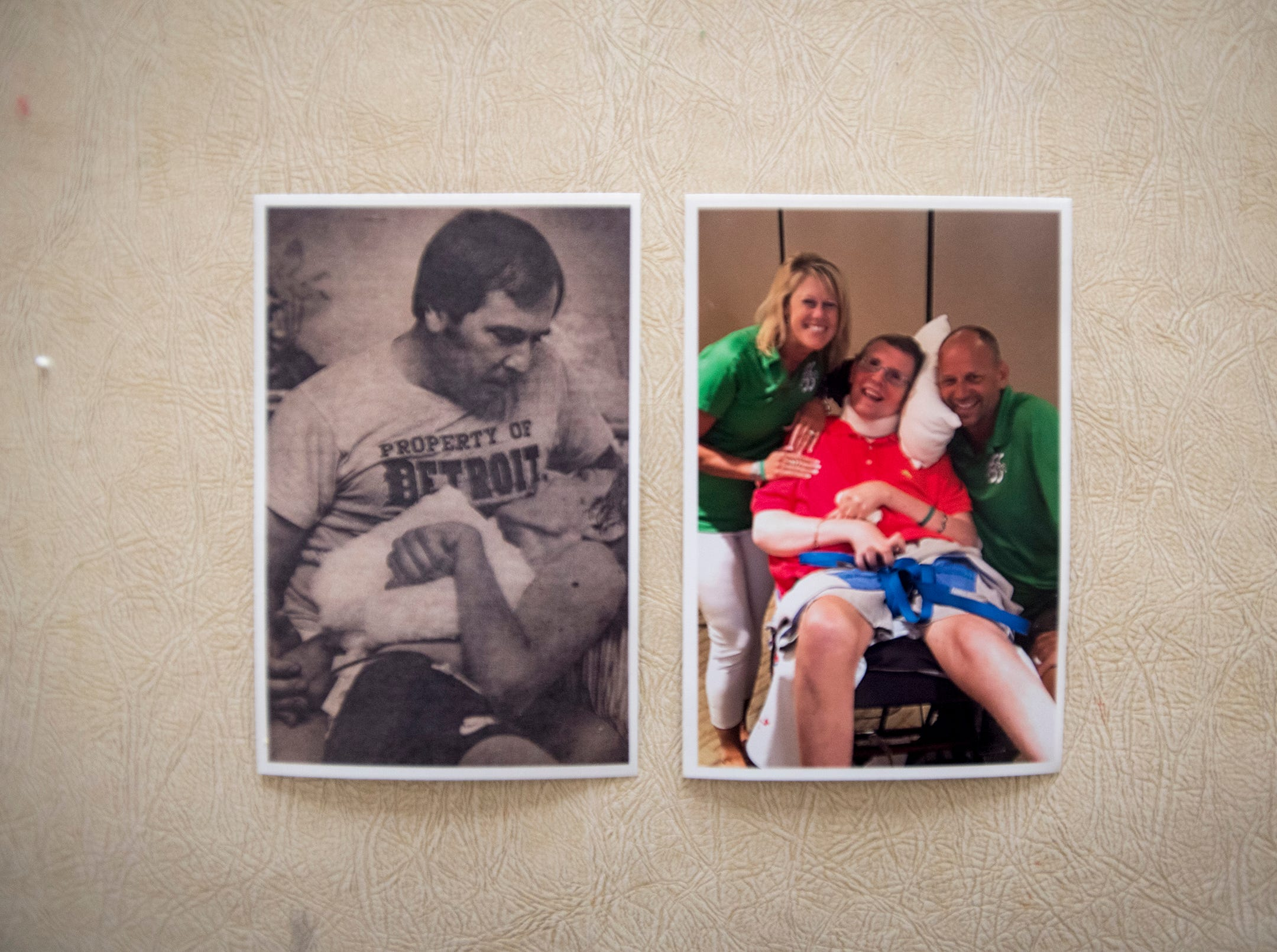 Two photos compare John's condition shortly after he was struck by lightning (left) and more recently.
