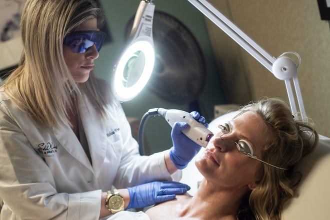 Melissa Wynne uses the V-Beam laser to reduce flushing at Stillwaters Day and Medical Spa.