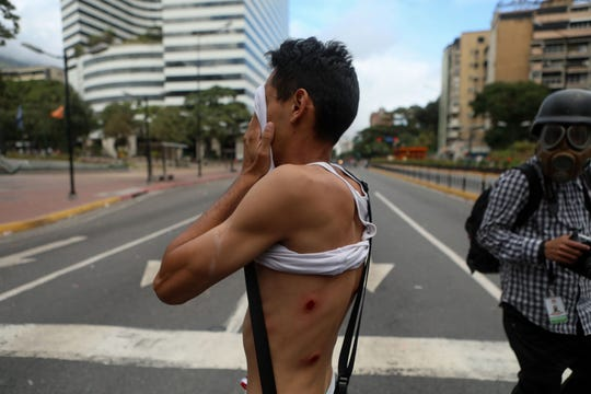 A protester shows injuries on his body during a demonstration against the Government of the Venezuela and President Nicolas Maduro, Wednesday.
