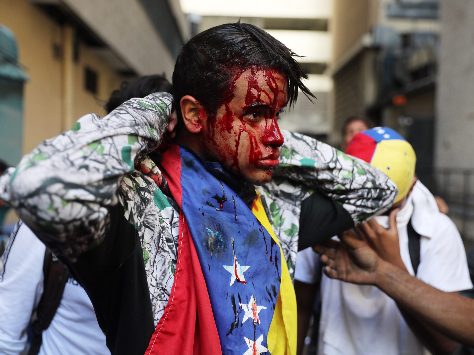 A wounded protester is aided as thousands take to the streets during a protest against President Maduro in Caracas, Venezuela, on Wednesday. Many Heads of State and governments have recognized Guaido as president, among them US President Donald Trump, Canadian Government and Brazil President Jair Bolsonaro. Venezuela has been facing an economic and social crisis where the inflation, according to the document of the National Assembly, has reached 80.000 per cent per cent in 12 months and the shortages of basic items have lead millions of people into poverty while according to reports up to three million Venezuelans have left the country since 2014.