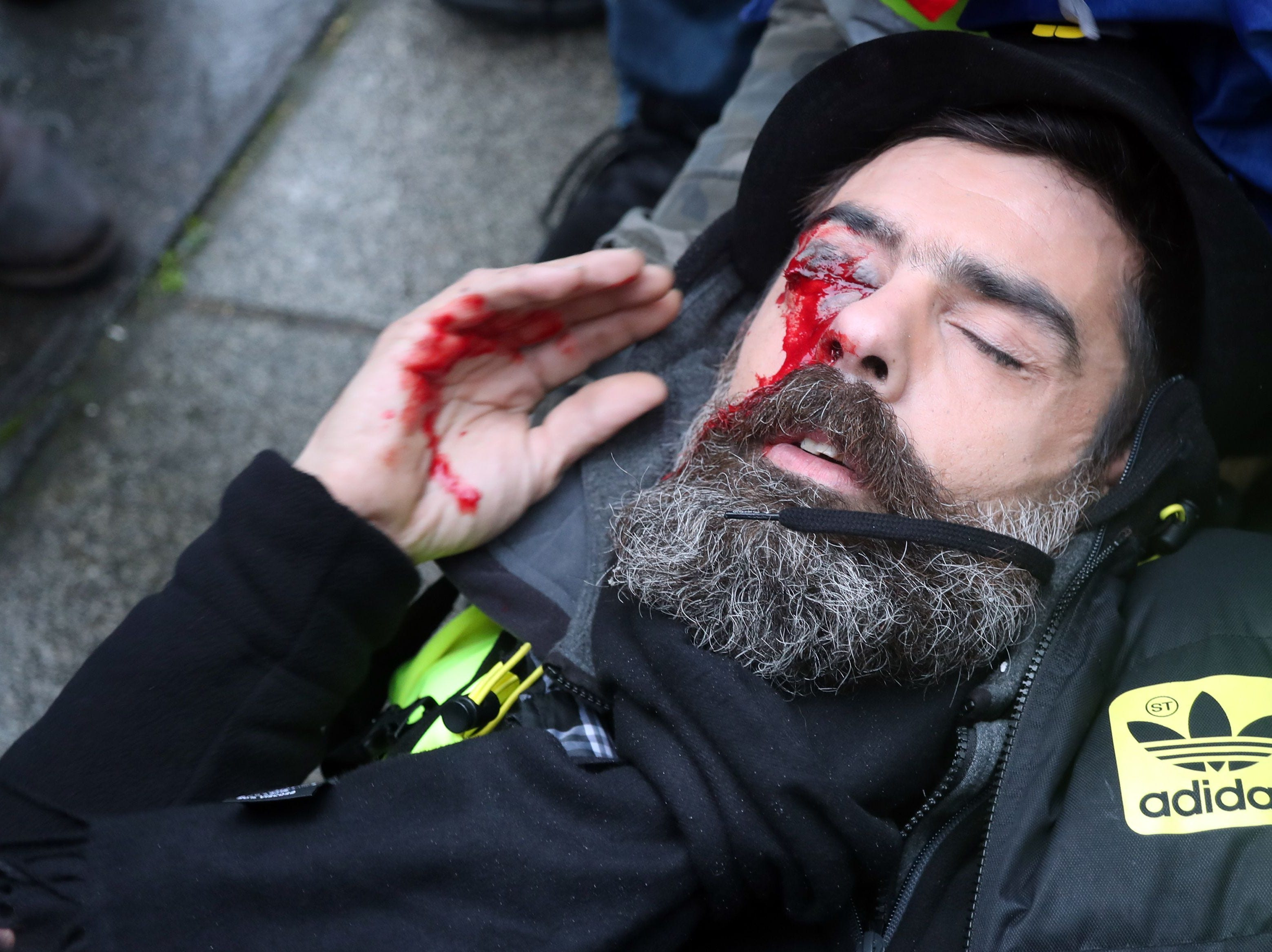 "Jerome Rodrigues, one of the leaders of the yellow vest movement, lies on the street after getting wounded in the eye during clashes with riot police in Paris during an anti-government demonstration called by the Yellow Vests ""Gilets Jaunes"" movement on Jan. 26, 2019."