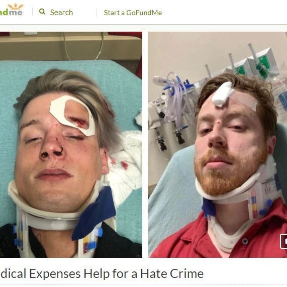 Texas gay couple shares experience after being attacked in hate crime
