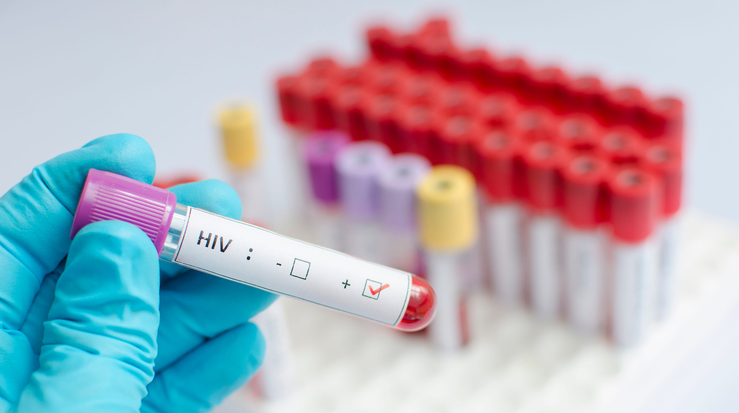 HIV cure: Second HIV patient cured but experimental