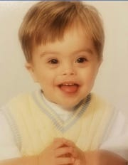 Jalen Pigg was a healthy toddler with no medical issues related to his Down syndrome.