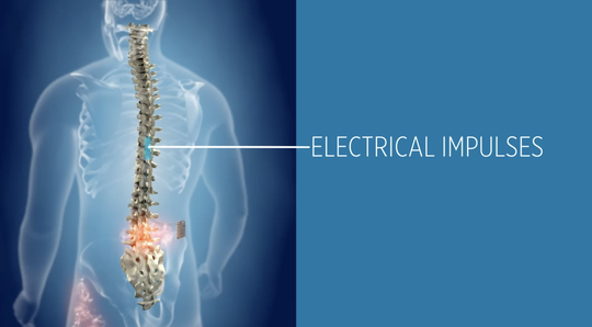 Electrical impulses are used to help with chronic pain.