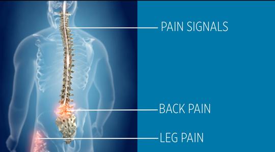 Spinal cord stimulators can help disrupt pain signals.