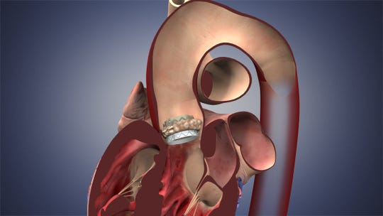 Transcatheter Aortic Valve Replacement (TAVR) is a minimally invasive procedure to replace a narrowed aortic valve that fails to open properly due to aortic stenosis. In this procedure, a catheter is inserted in the femoral artery and the replacement valve is guided into the heart. A balloon is expanded to deploy the valve into place. Some TAVR valves are self-expanding.