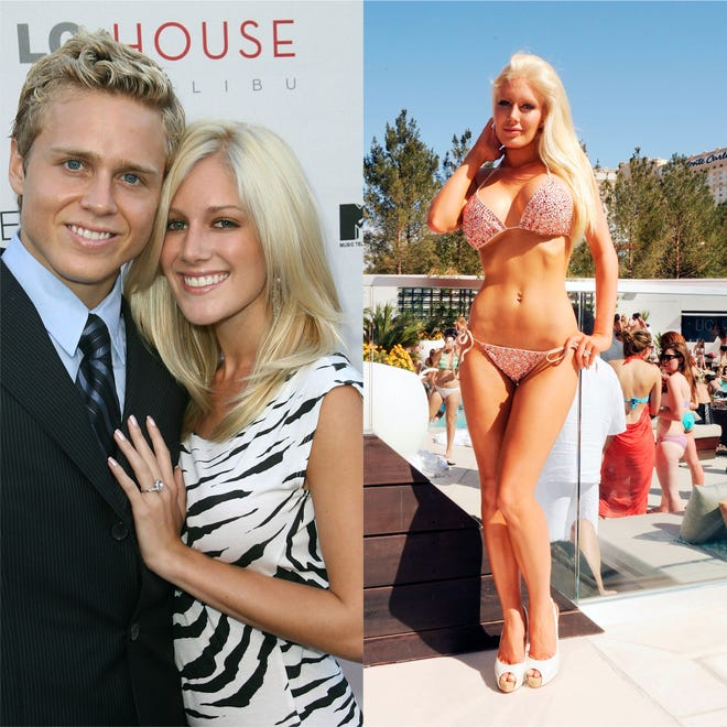 Heidi Montag is pictured on August 8, 2007 and on April 10, 2010 after several plastic surgeries.