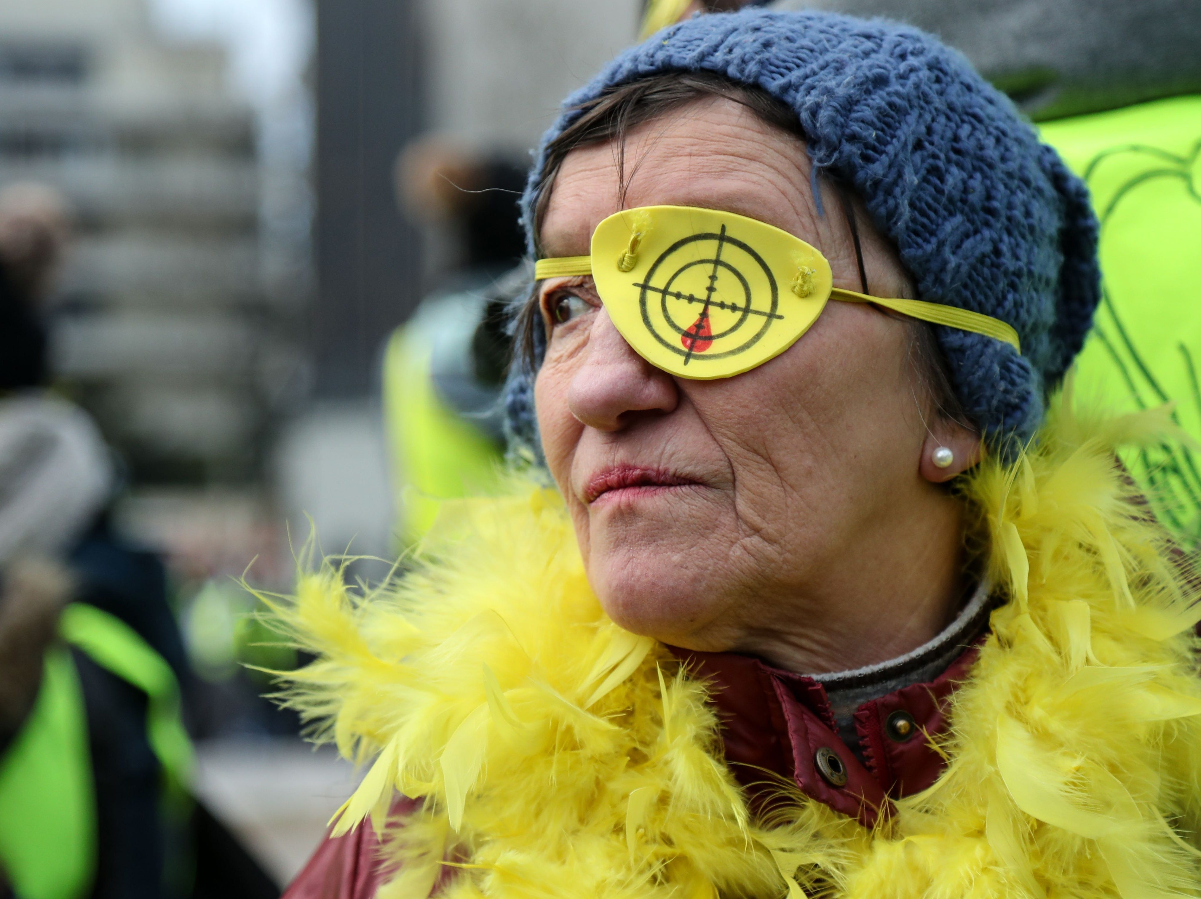 A protester with a fake eye injury, takes part in a march on Feb. 2, 2019 in Paris, called to pacifically protest against police violence toward participants of the last three months demonstrations in France, as 'Yellow Vest' protesters take to the streets for the 12th consecutive Saturday.