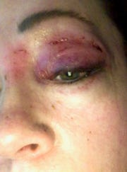 Kathy Vargo of Birmingham said she was struck by a falling ceiling tile at a Royal Oak bar during Maroon 5's loud Super Bowl halftime set.