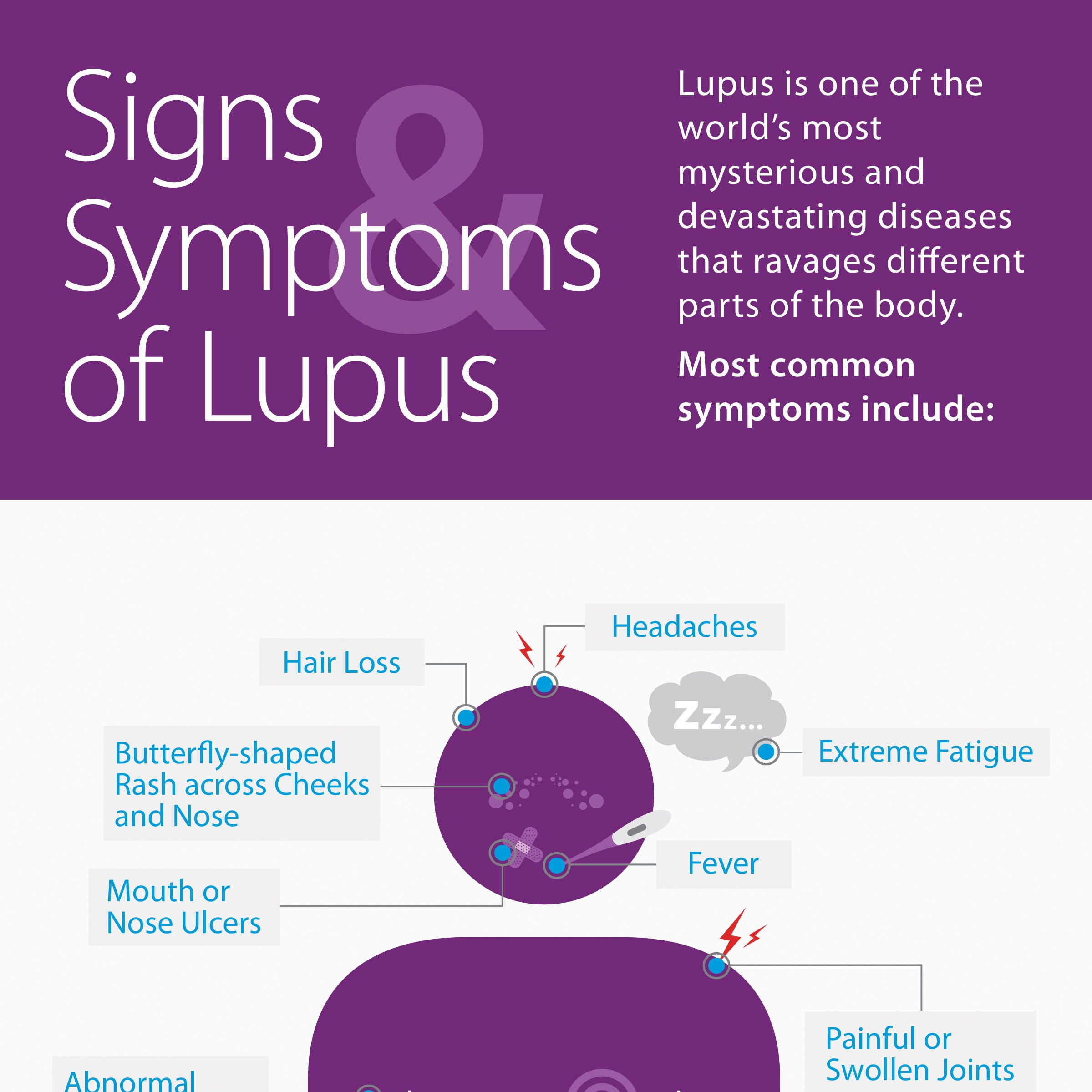 Guest commentary: Someone you know has lupus
