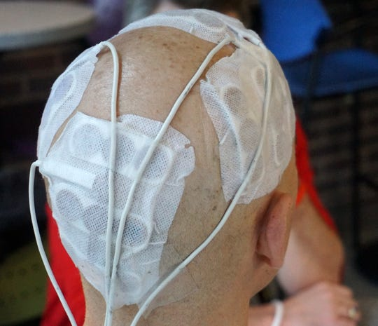 Doyle's Optune device attaches to his head via multiple adhesive ceramic patches.