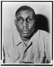 World War II veteran Isaac Woodard with eyes swollen shut from aggravated assault and blinding.