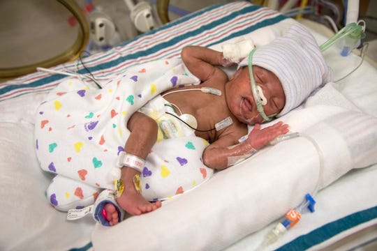 Le Bonheur Children's Hospital succeeded in implanting a newly approved device used to correct a heart defect inside a patient. Two-week-old Katelynn Davis was the first to receive the device post-approval on the morning of Feb. 6, 2019.