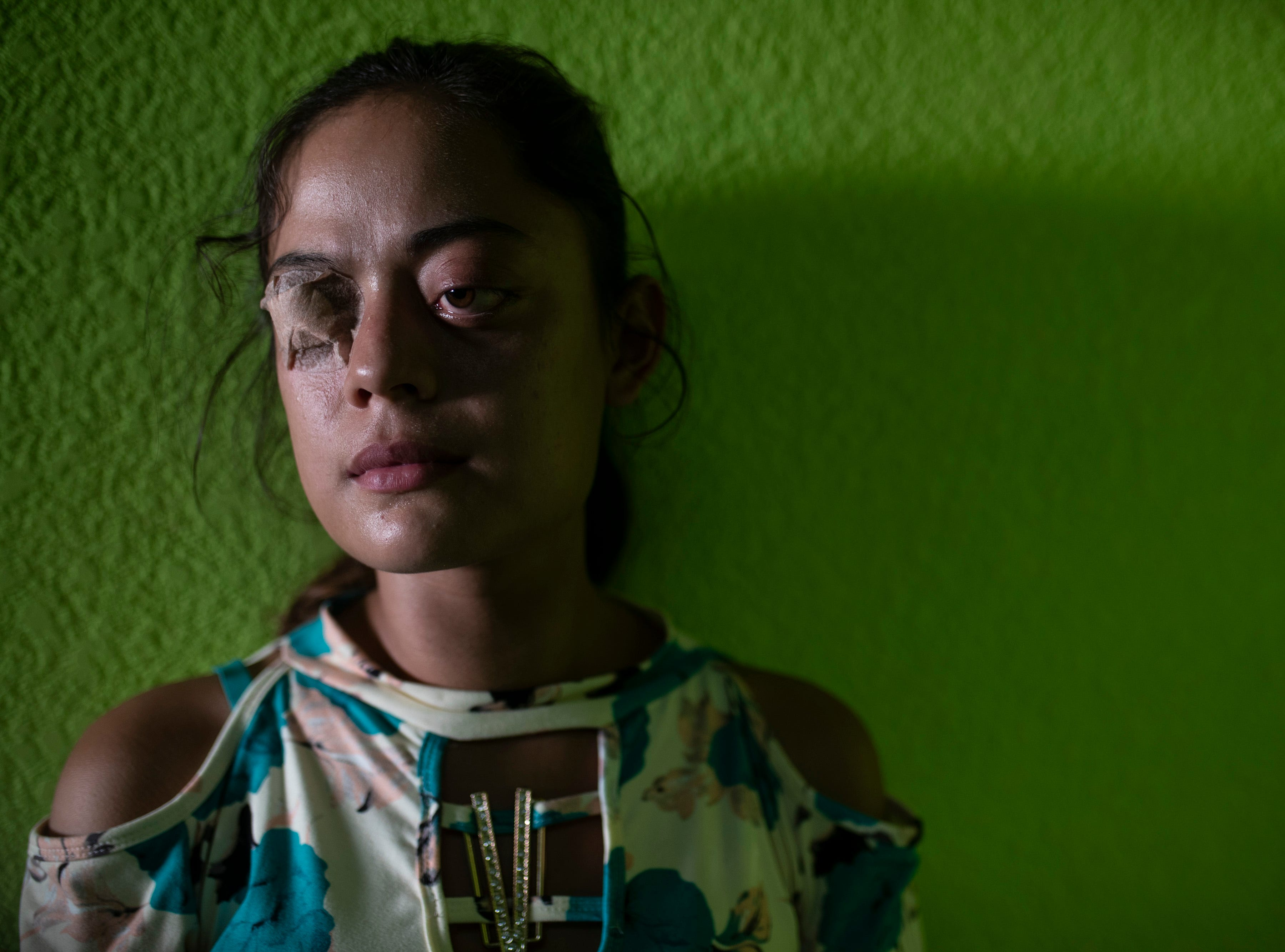 Lindsay Reyes, 20, stands in the waiting area at Hospital Nacional Salamá to be seen about her swollen eyes related to a hyperactive thyroid. Reyes has worn special glasses to protect them, as her eyelids cannot completely close. Jan. 23, 2019