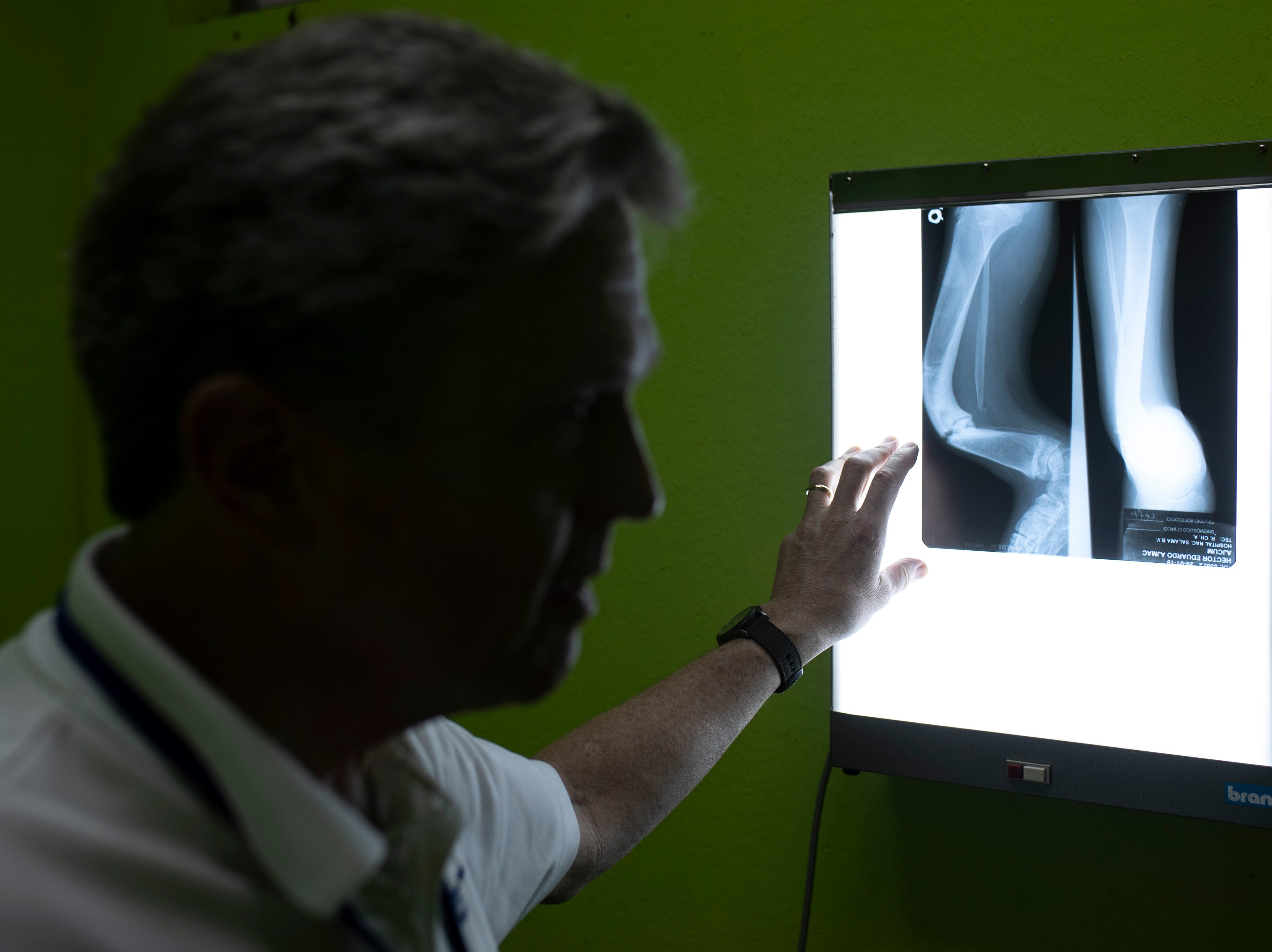 Orthopedic surgeon Dr. George Quill looks over the x-rays and checks up on the progress of patient Manuela Heidi Ijom Rivera whom he operated on the previous year. Jan. 20, 2019