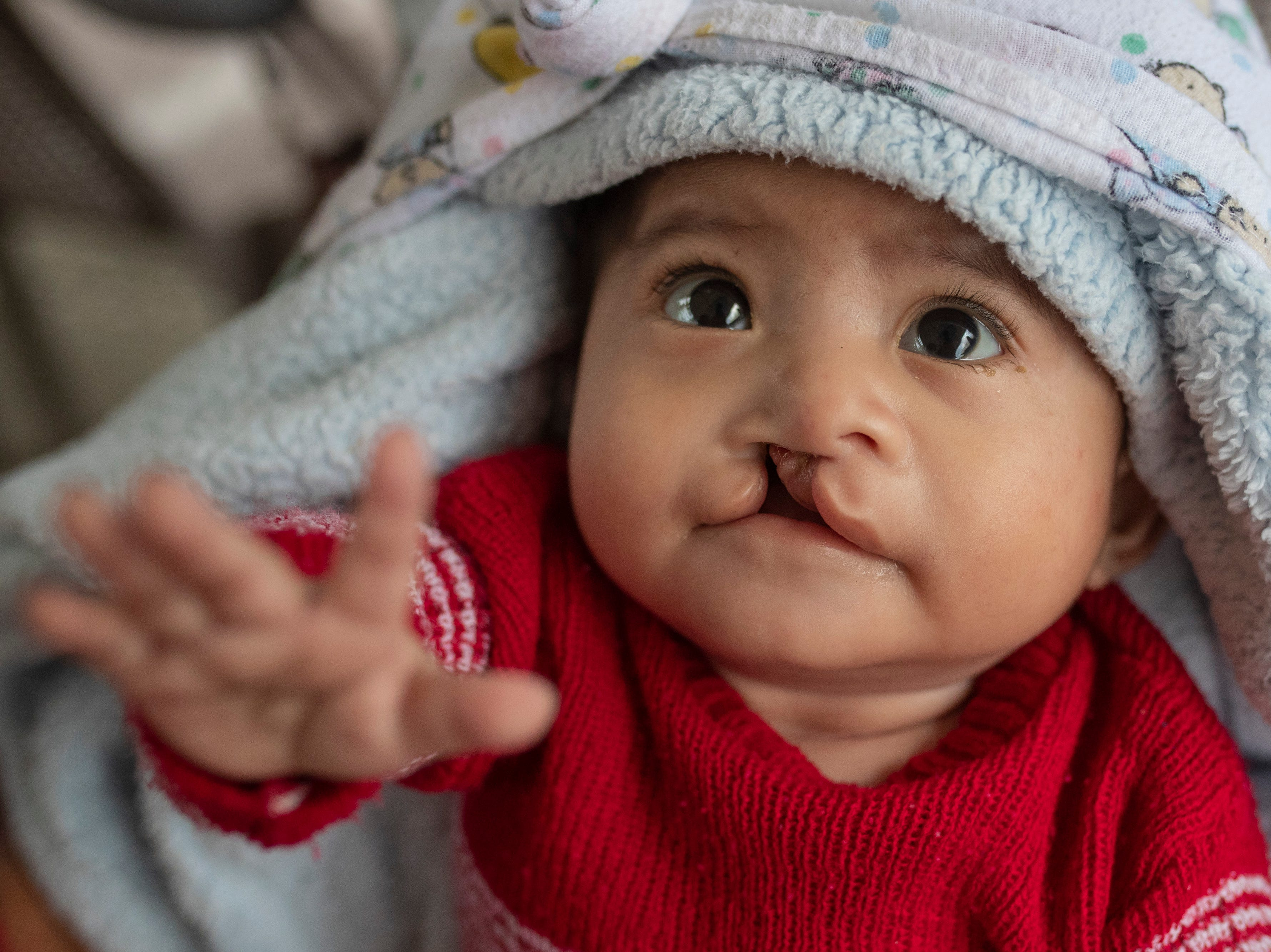 Oberleen Coc Ax, nine months, was born with a cleft lip and was scheduled to have it repaired by COTA'S University of Kentucky plastic surgeon Dr. James Liau. Jan. 20, 2019