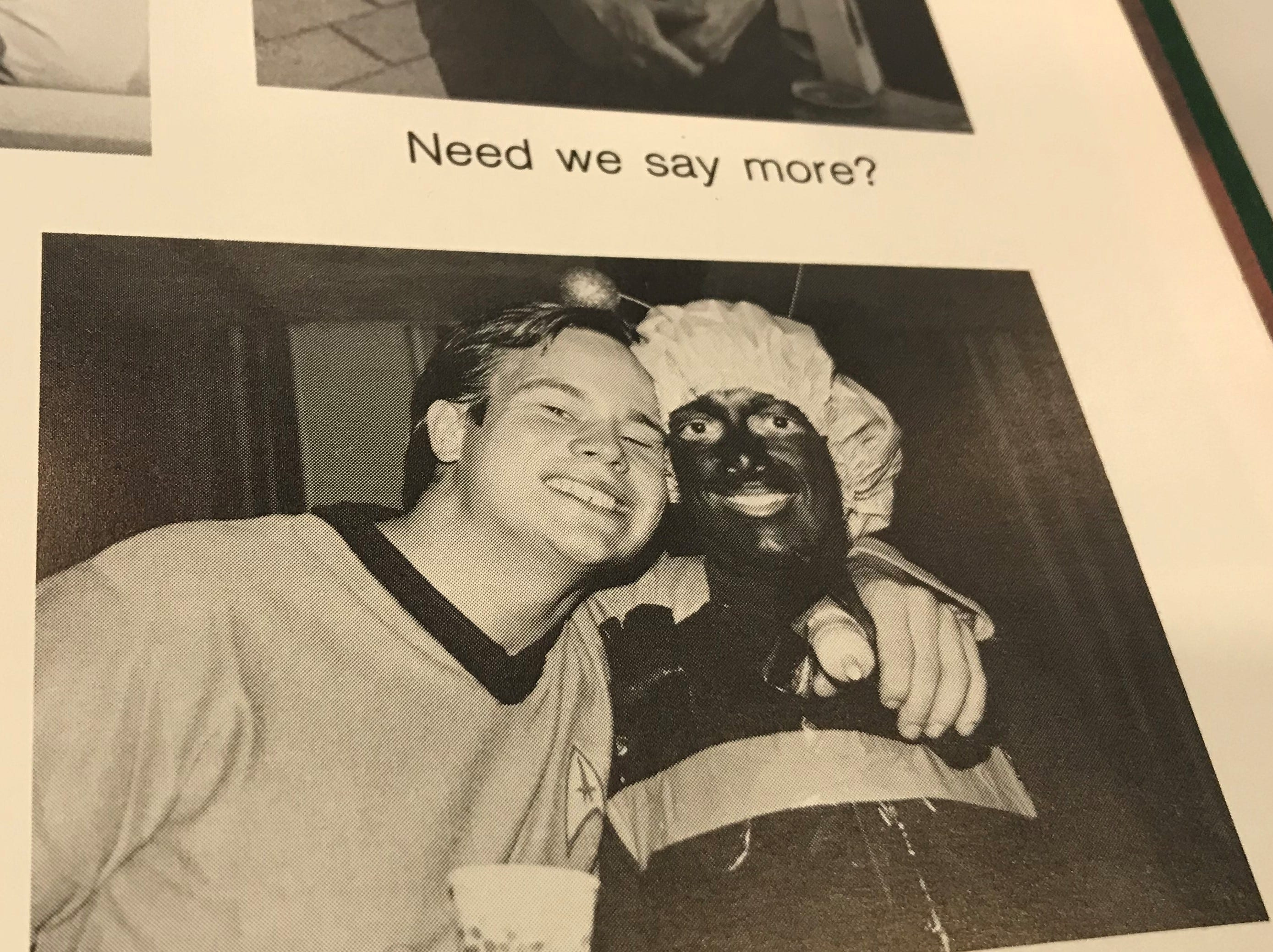 UVM's Pulse medical school yearbook photograph from 1984 shows a black and white image of a person in a bee costume and what appears to be blackface.