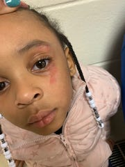 Ciara Morgan said her 5-year-old daughter, Hailey, told her that her teacher hit her in the face with a ruler at school.