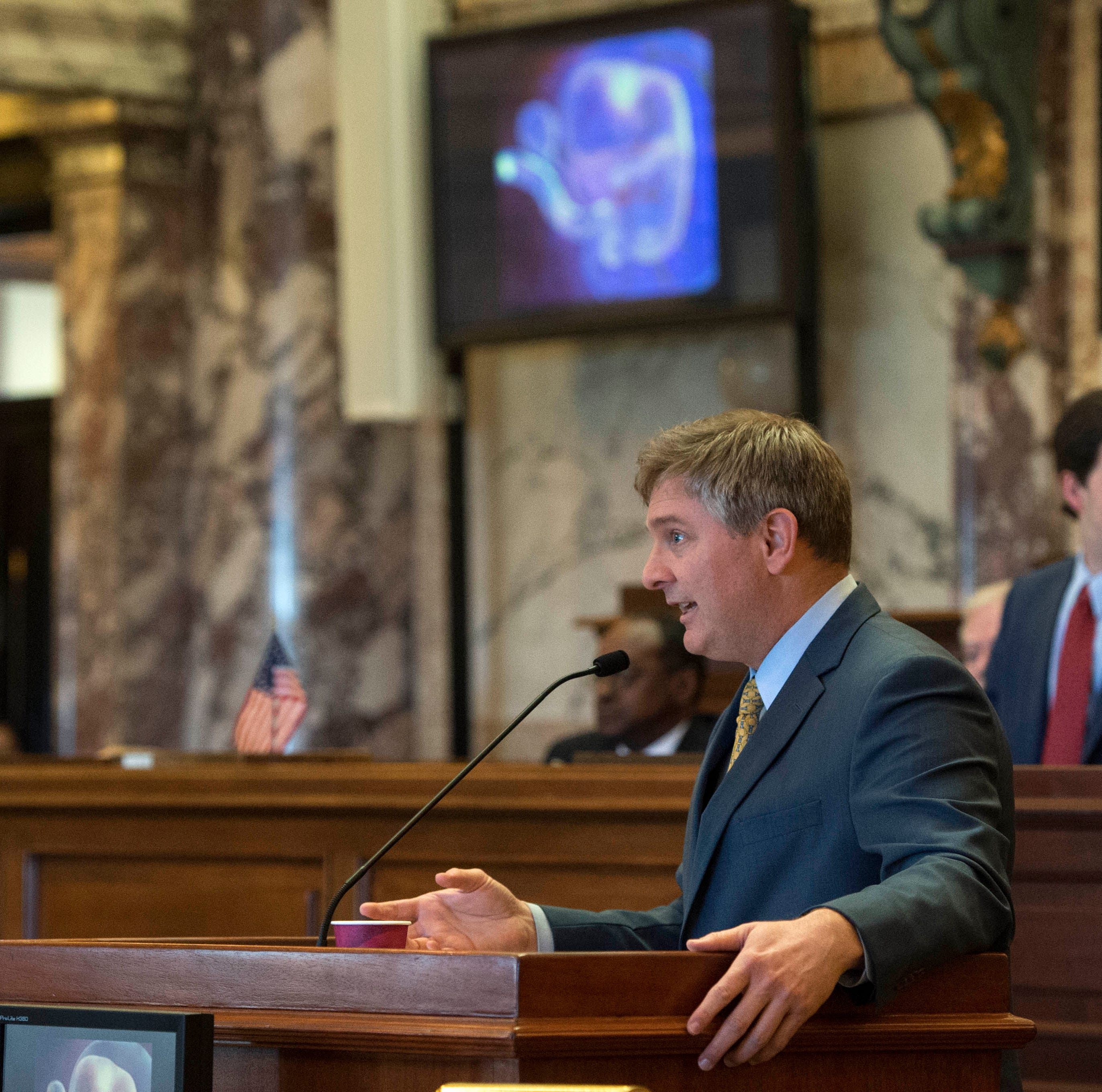 As images of fetuses scroll across monitors in the senate chamber, Sen. Joey Fillingane, R-Sumrall, presents S.B. 2116-also known as the 'Heartbeat bill' to senate members, Wednesday, Feb. 13, 2019 in Jackson. Sen. Derrick Simmons, D-Greenville, presented an amendment to the proposed legislation allowing for special considerations for victims or rape and or incest, but the measure did not pass.