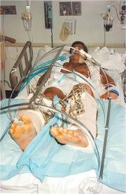Steven Benvenisti, following the crash that left him in a coma.