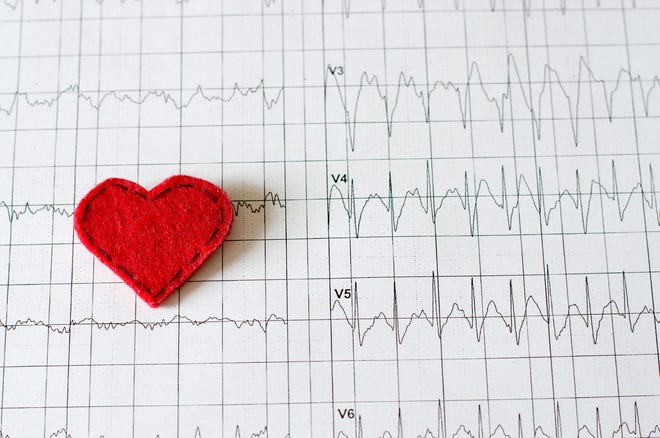 More than five million Americans have heart failure, making it one of the leading causes of hospitalization.