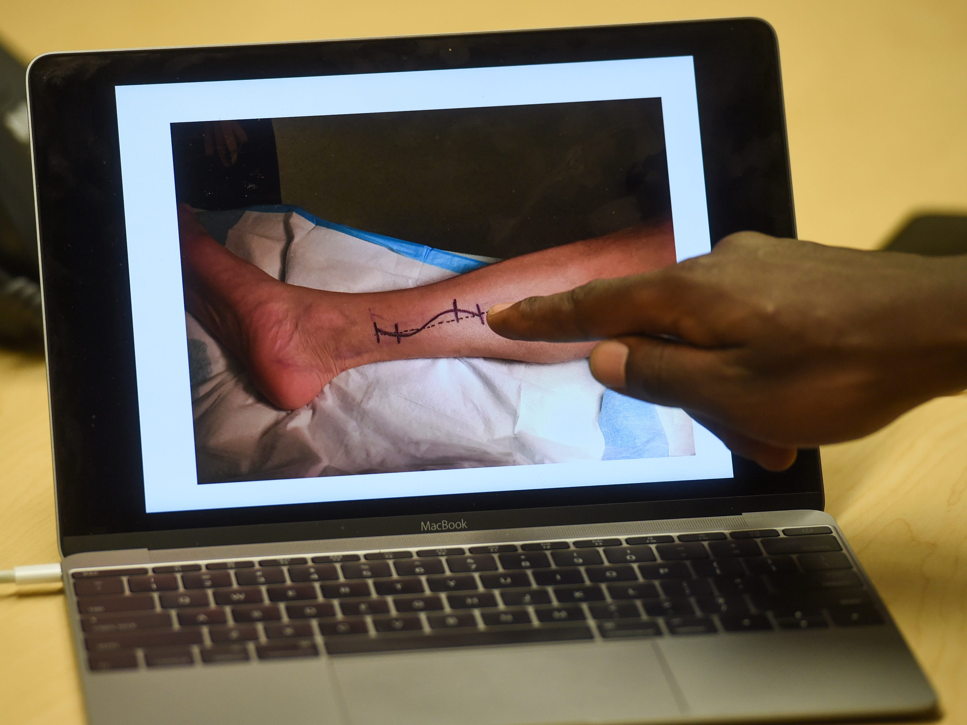 A planned incision marking is shown on the leg of patient Cano Collazo-Cruz, 56, during a presentation at the Guam Regional Medical City on Feb. 15, 2019.
