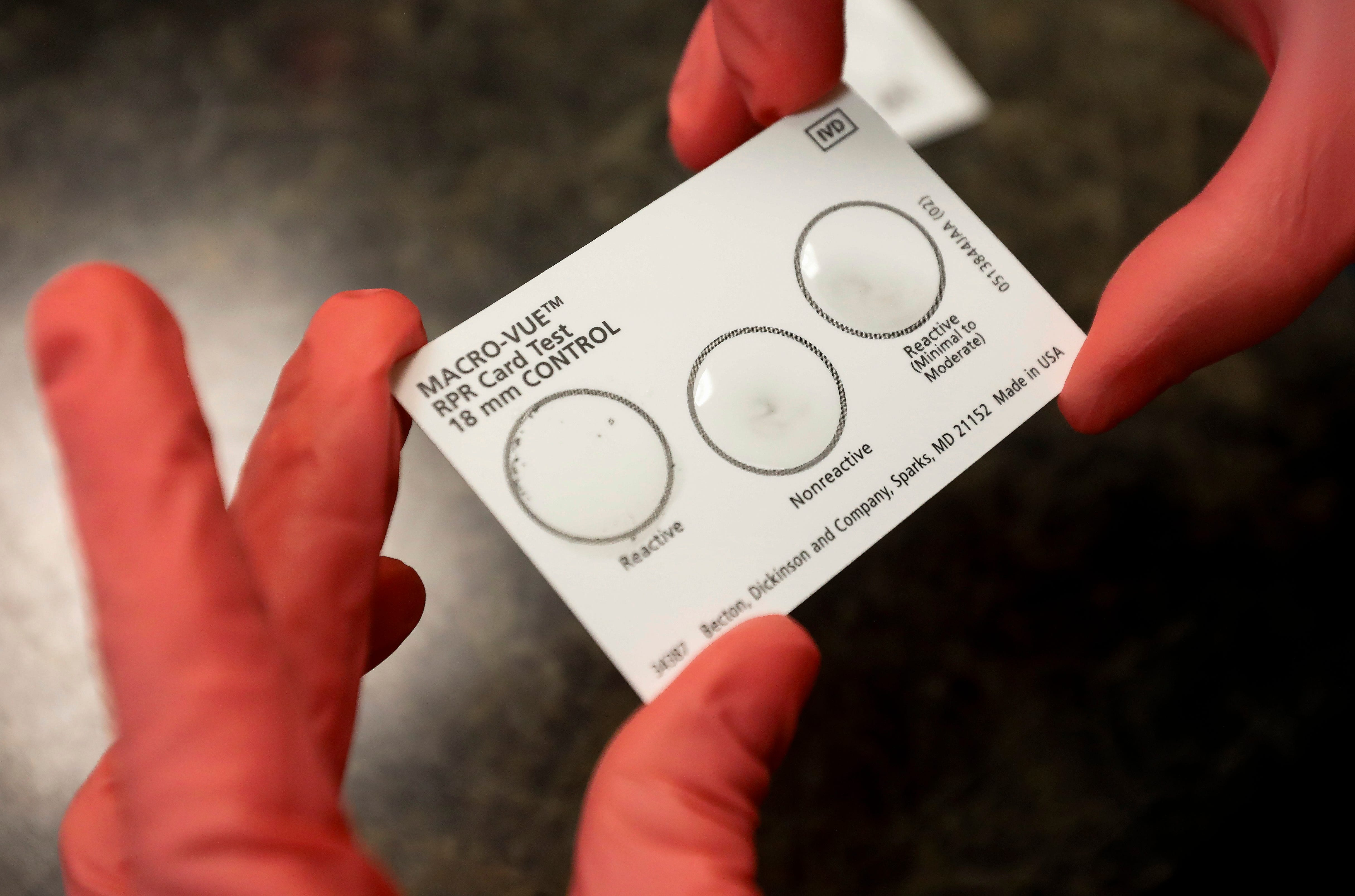 Machelle Petit, the senior lab scientist at the Springfield-Greene County Health Department, displays what a positive test for syphilis, at left, looks like.