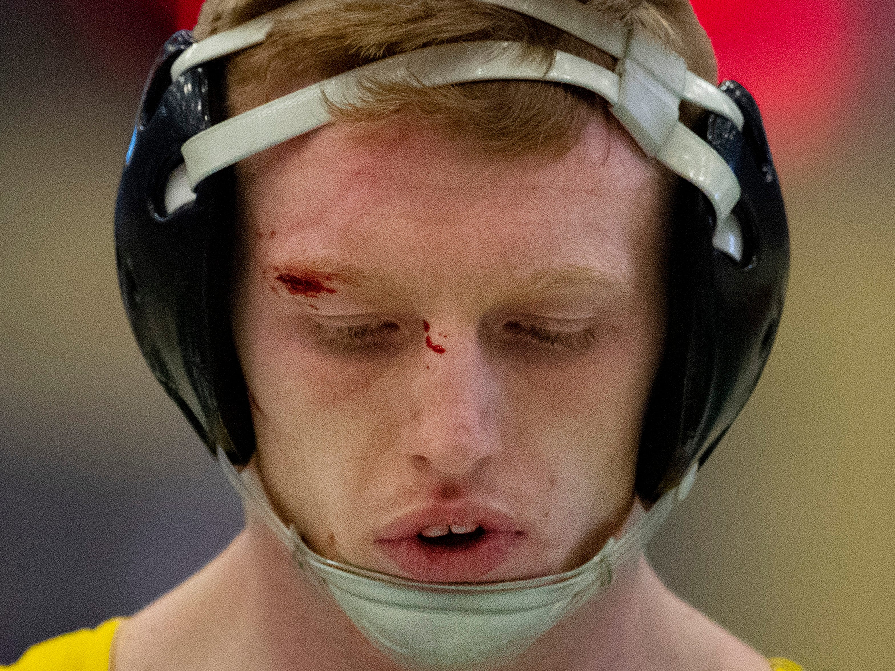 Johnson Central's Joe Jackson waits for medical attention after a cut was opened up near his eyebrow while facing Union County's Micah Ervin in the 170-pound semifinals at the KHSAA State Wrestling Championships at the Alltech Arena in Lexington, Ky., Saturday afternoon. The match continued and Ervin came out on top in the match to advance to the finals.