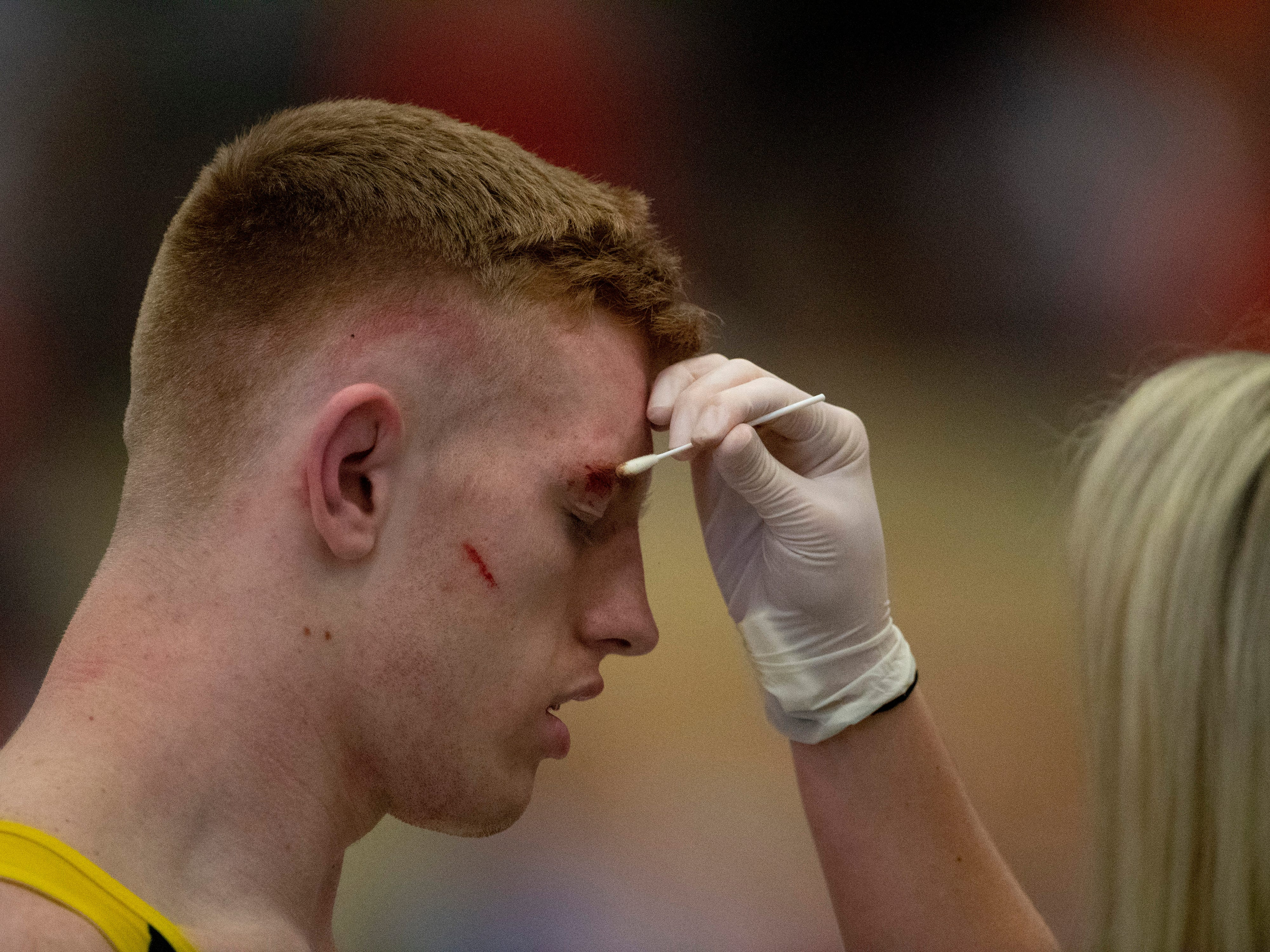 Johnson Central's Joe Jackson gets medical attention after a cut was opened up near his eyebrow while facing Union County's Micah Ervin in the 170-pound semifinals at the KHSAA State Wrestling Championships at the Alltech Arena in Lexington, Ky., Saturday afternoon. The match continued and Ervin came out on top in the match to advance to the finals.